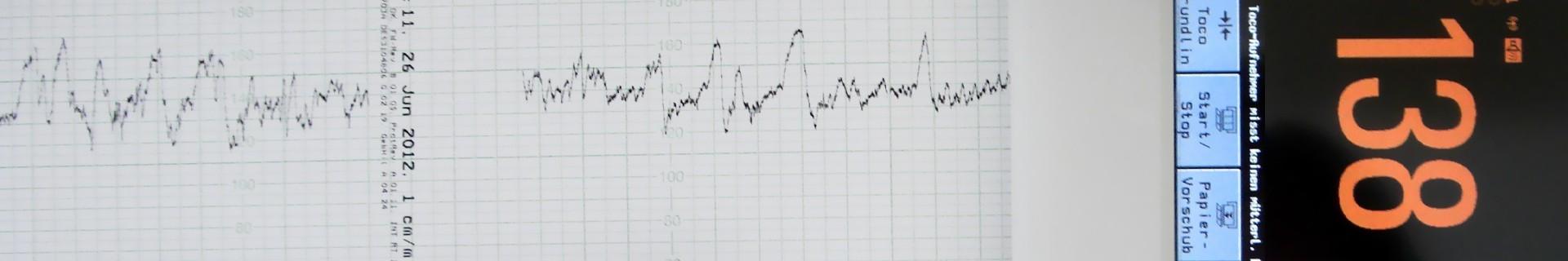 Cardiotocografe