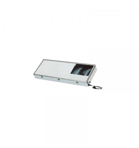 Negatoscop cu regulator de lumina - MO644
